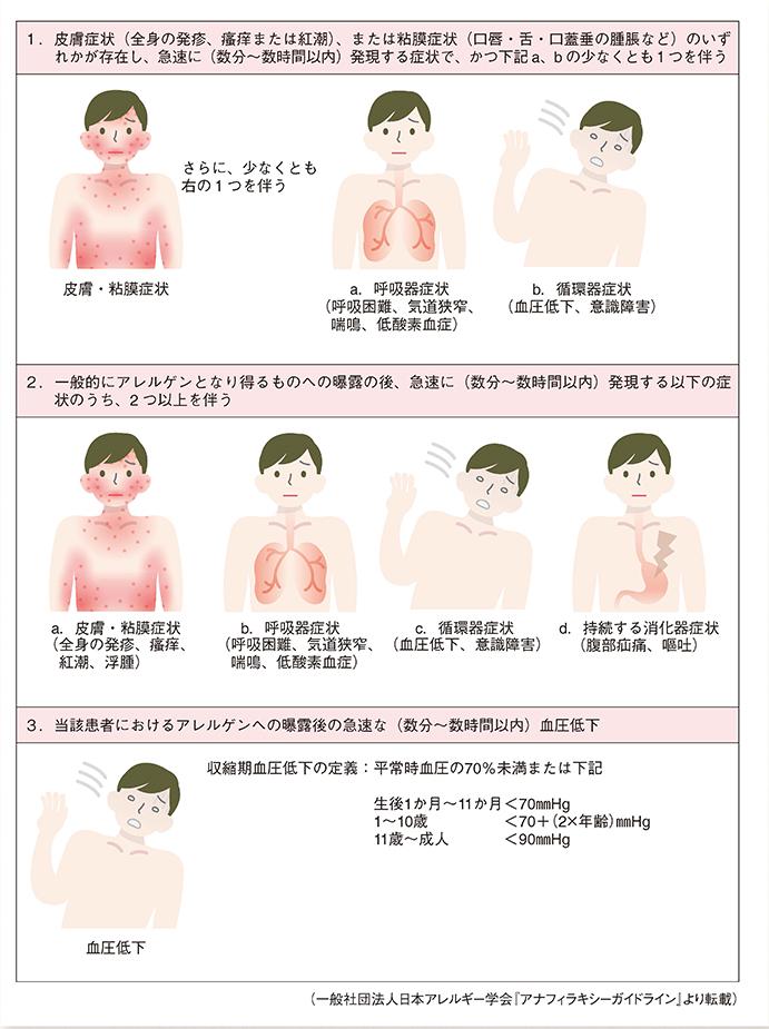 症状 大豆 アレルギー
